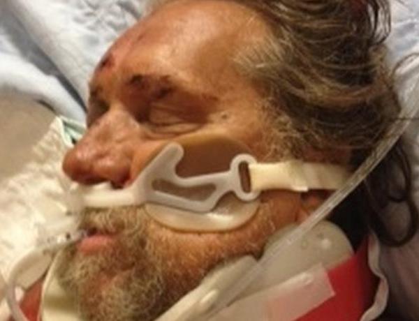 UPDATE_ Injured Man Identified in Scooter Crash_2781961102718356146