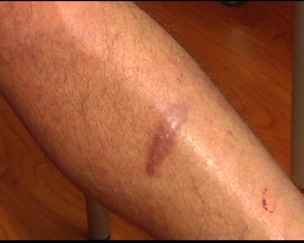 Wound Clinic Saves Man-s Leg_15685771-159532