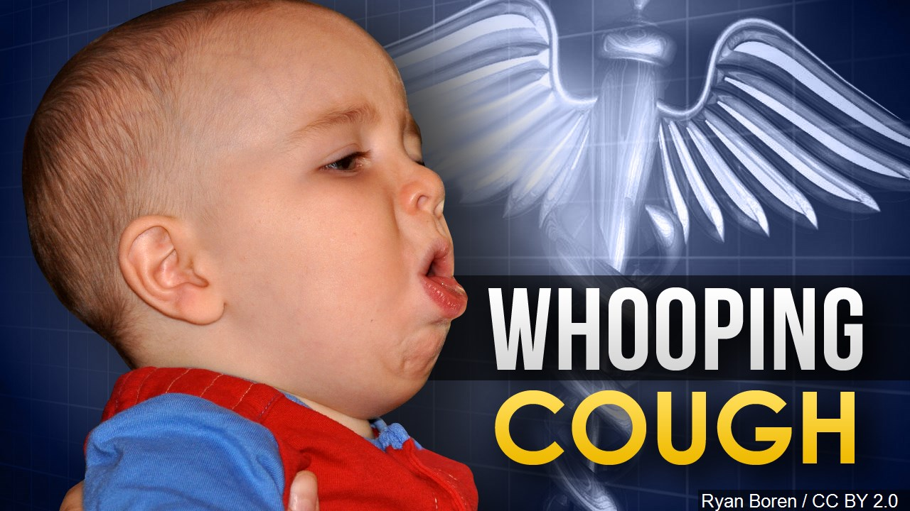 whooping cough mgn_1501184955712.jpg